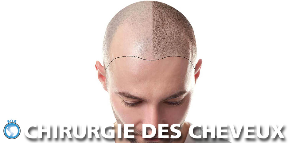 stce-chirurgie-cheveux-tunisie