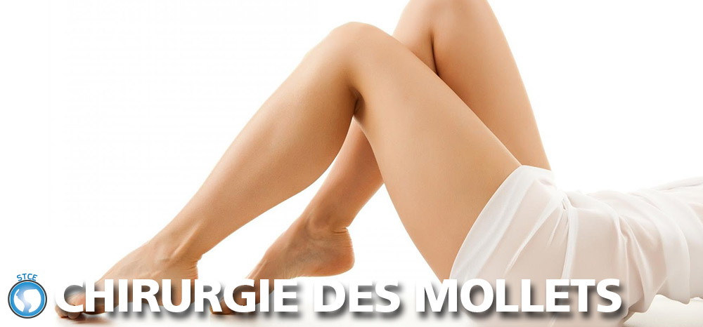 stce-chirurgie-mollets-tunisie