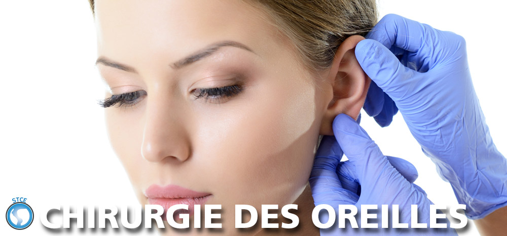 stce-chirurgie-oreilles-tunisie