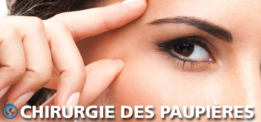 stce-chirurgie-paupieres-tunisie